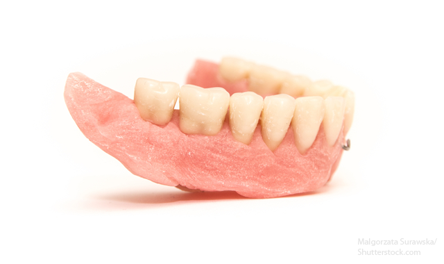 The 5 craziest denture tips on the internet | www