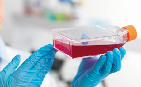 Adherent Cell Culture in Biopharmaceutical Applications: The Cell